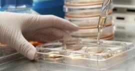 4 preguntas comunes sobre los laboratorios de células madres